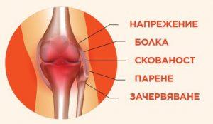 признаци за болки в ставите