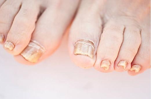 крака, нокти, гъбички, гъбична инфекция