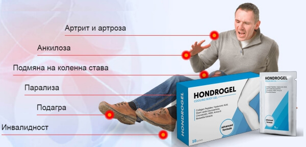 hondrogel ефекти, болки в стави, мъж