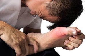 Подагра - Какво Точно Е Заболяването и Каква Диета Да Спазваме?