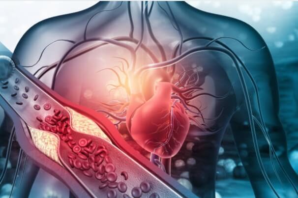 Какво Представлява Холестеролът